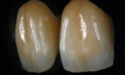 Coronas de disilicato de litio con e.max