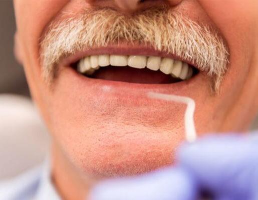 dientes en un día
