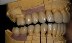 Rehabilitacion metal ceramica
