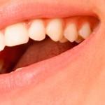 Con tu sonrisa puedes - Campaña de salud bucodental