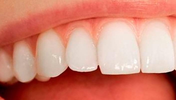 Resultado de imagen de esmalte dental