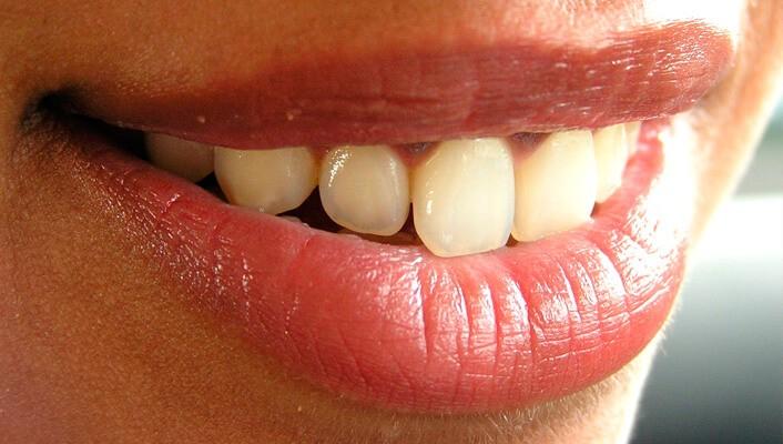Odontología Bioestética