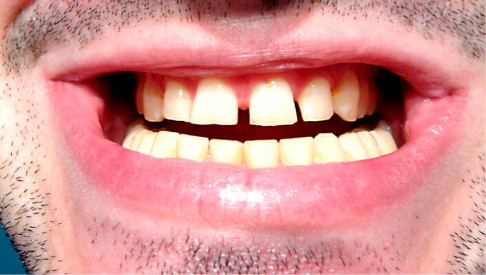odontología bioestética problemas maticatorios
