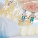 Resolvemos tus dudas sobre prótesis fijas y removibles