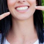 dientes provisionales