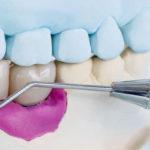 Los riesgos de escoger implantes dentales low cost