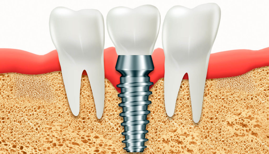 Comparamos implantes dentales con dentaduras postizas y puentes